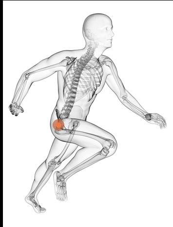 Behandlungen im Bereich Orthopädie in der MEDIAN Klinik: Hüfte