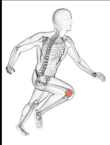 Unsere Behandlungen im Bereich Orthopädie bei MEDIAN:Knie